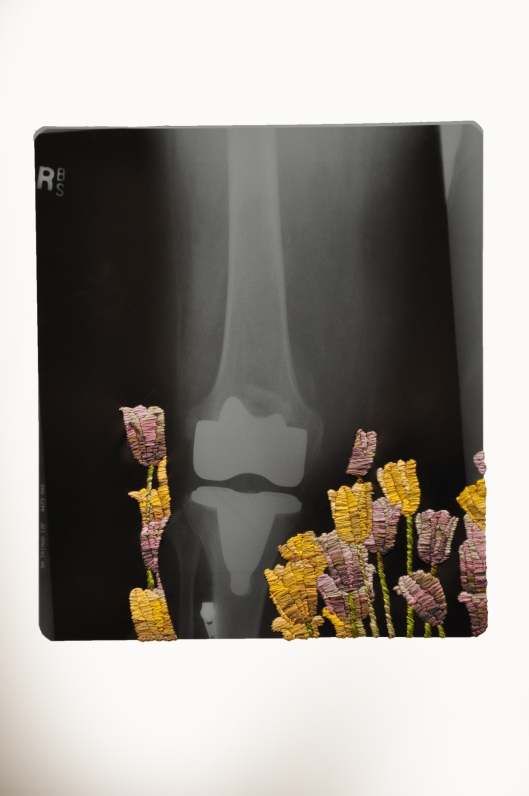 'New Knee With Tulips' by Matthew Cox